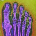 Florence Welch broken foot, music news, noise11.com